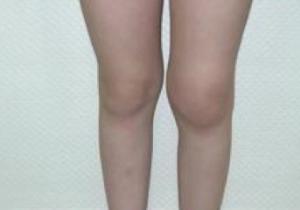 Artritis de rodilla izquierda.